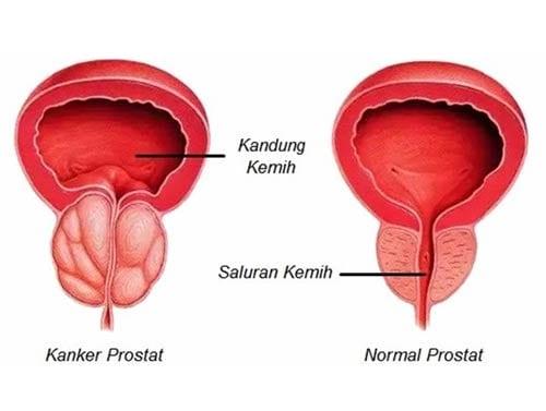 Kanker Prostat 03 - Finansialku